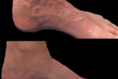 veins-030716-1