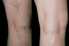 veins-030716-4