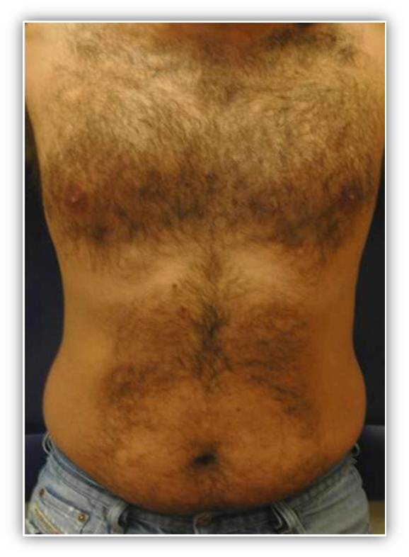 Laser hair removal bay area tatoo removal marin county for Laser hair removal over tattoo